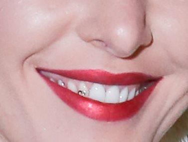 Γνωστή Ελληνίδα τραγουδίστρια εμφανίστηκε με διακοσμητικό στρας στα δόντια