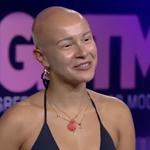 GNTM: Η αλωπεκία της Λυδίας από τα 11 και η έντονη συγκίνηση