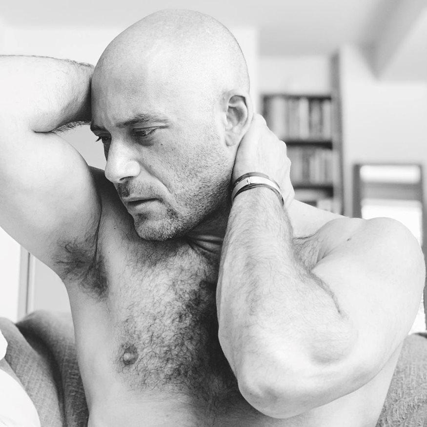 Αντίνοος Αλμπάνης: Το πρόβλημα υγείας που τον ανάγκασε να ξυρίσει το κεφάλι του