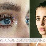 Έχω τις λύσεις για τα προβλήματα των ματιών σου