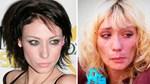 Το Next Top Model που παραμορφώθηκε από τα ναρκωτικά